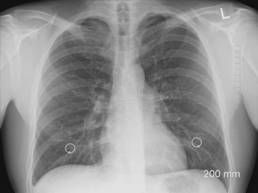 """Патологоанатом рассказал о состоянии лёгких больных коронавирусом: """"Это не пневмония"""""""